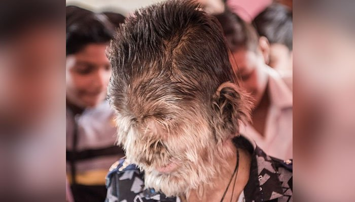 a, child, in, indian, state, madiha pardesh, who, have, full, hair, on, his, mouth